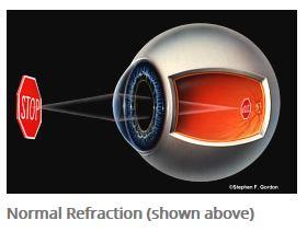 eye refraction diagram